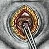 Удаление камней из мочевого пузыря у мужчин (цистолитотомия): ход операции