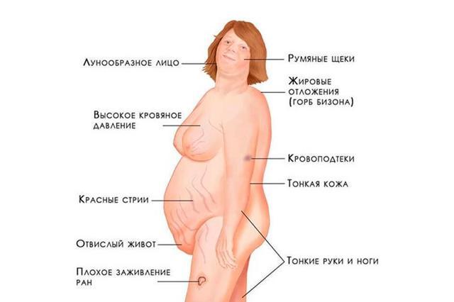 Синдром Иценко-Кушинга (гиперкортицизм): симптомы и лечение болезни