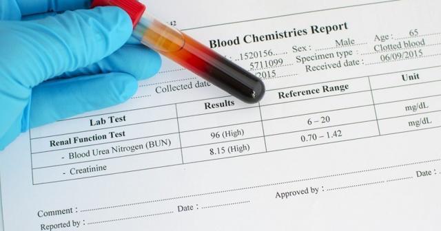Норма креатинина в крови у мужчин, женщин, детей - таблица показателей, подготовка к анализу, диета