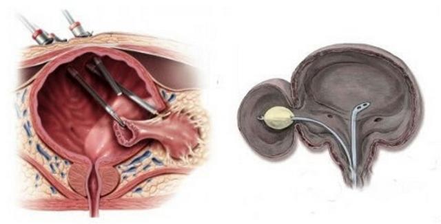 Дивертикул мочевого пузыря: причины, симптомы и лечение