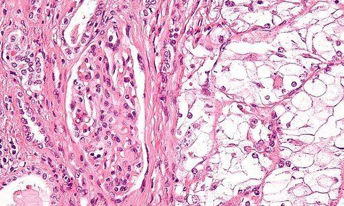 Лучевой цистит у мужчин и женщин: симптомы, лечение препаратами и народными средствами