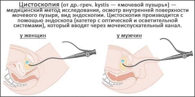 Цистоскопия мочевого пузыря у женщин, мужчин и детей - показания к обследованию, подготовка, отзывы