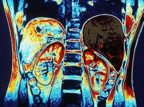 МРТ надпочечников с контрастом и без: что показывает, подготовка, как делают