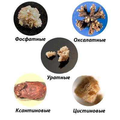 Как выходят камни из почек у женщин и мужчин: симптомы, лечение