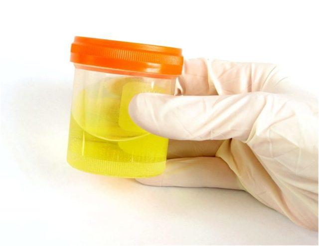 Повышенный белок в моче при беременности - норма, причины, симптомы, лечение