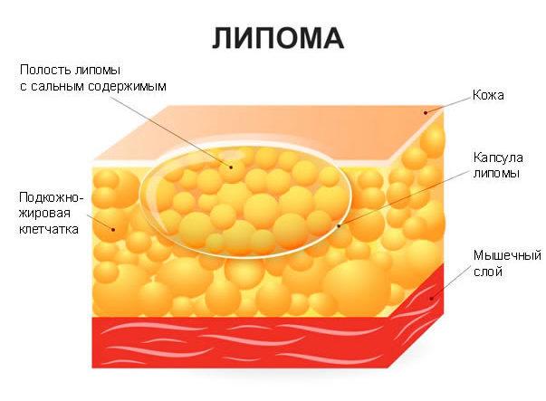 Липома почки: виды, причины, симптомы, диагностика и лечение