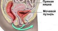 Цистит у женщин:  причины, симптомы, диагностика, лечение препаратами