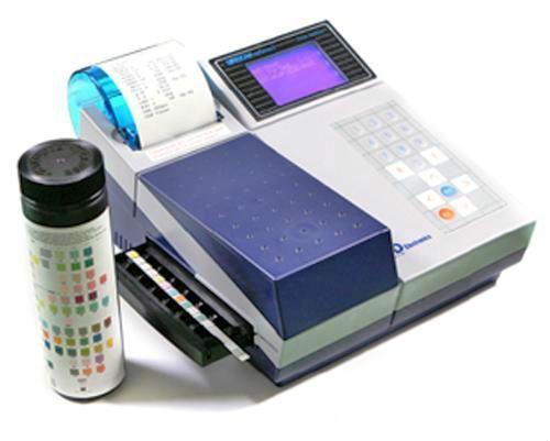Диагностические тест-полоски для анализа мочи: определение в домашних условиях