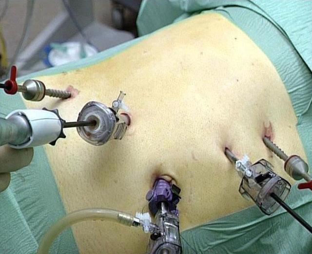 Аденома почки: причины, симптомы, стадии, лечение и прогноз