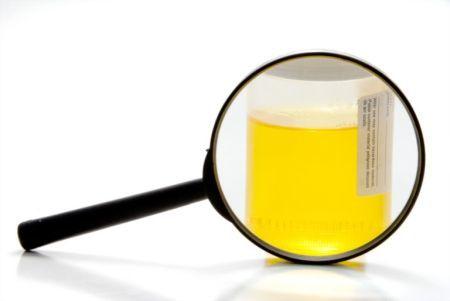 Анализ микроскопия осадка мочи: что это такое, норма, расшифровка