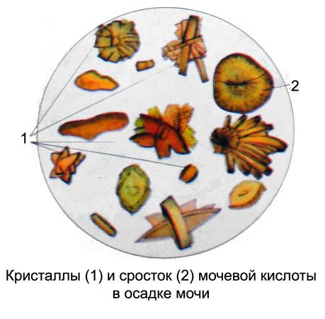 Повышенная мочевая кислота в моче у мужчин, женщин и детей: норма, причины, питание