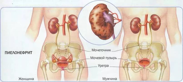 Осложнения пиелонефрита: последствия для мужчин, женщин и детей