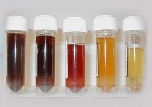 Моча цвета мясных помоев: причины появления, общие правила лечения