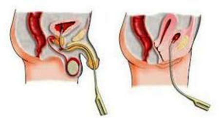 Инстилляция мочевого пузыря у женщин и мужчин: показания, проведение процедуры, отзывы
