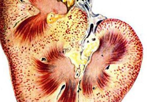 Нефроз почек: виды, причины, симптомы, лечение и профилактика