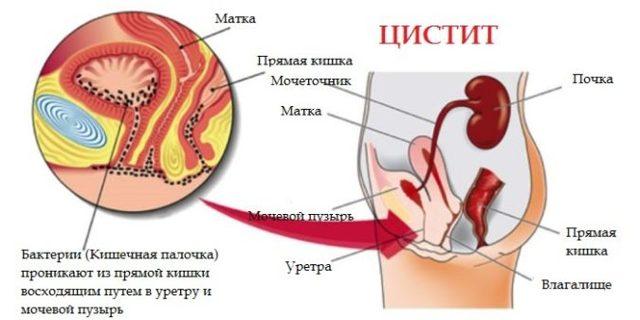 Воспаление мочевыводящих путей: симптомы у женщин и мужчин, лечение