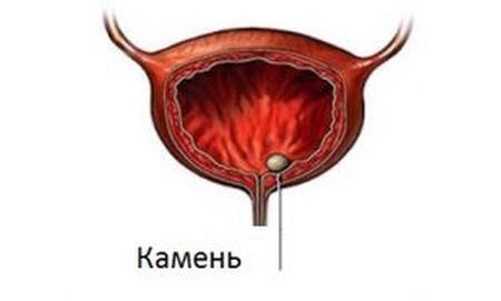Мочекаменная болезнь у мужчин: причины, симптомы и лечение