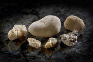 Фосфатные камни в почках: диагностика, лечение, профилактика