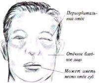 Нефритический синдром у взрослых и детей: симптомы и лечение