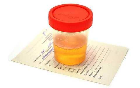 Повышенный белок в моче у ребенка: норма (таблица), причины, лечение