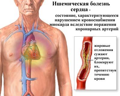 Альбуминурия – что это такое, норма, причины повышения в моче
