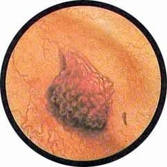 Папиллома мочевого пузыря: симптомы и лечение мужчин и женщин