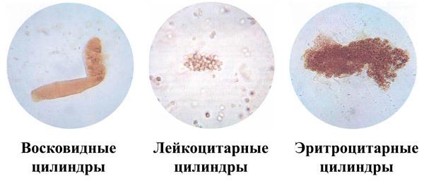 Причины повышения цилиндров в моче у взрослых и детей и их виды
