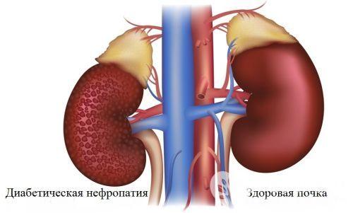 Нефропатия: причины, виды, диагностика, лечение и прогноз
