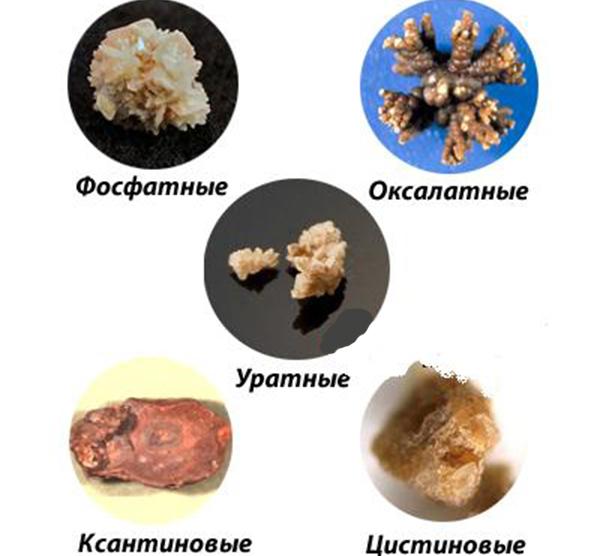 Виды камней в почках: фото, описание и методы диагностики