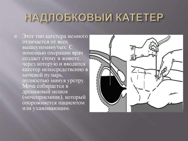 Троакарная цистостомия мочевого пузыря у мужчин: операция, уход