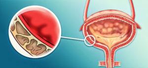 Утолщение стенок мочевого пузыря: что это такое, норма, причины, лечение