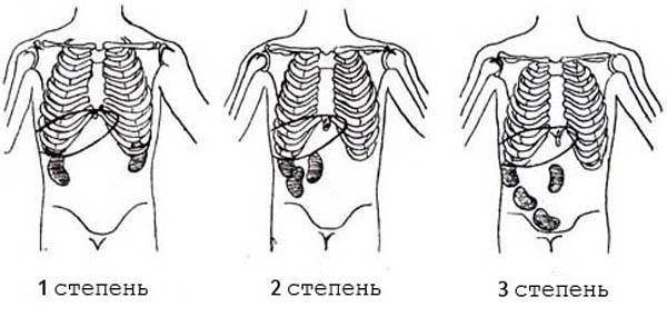 Нефроптоз правой почки: стадии, симптомы, диагностика и лечение