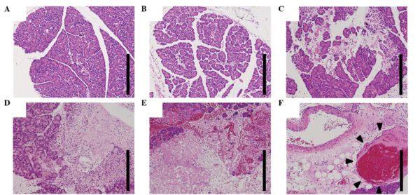 Рак почек: почечно клеточный, гипернефроидный, плоскоклеточный