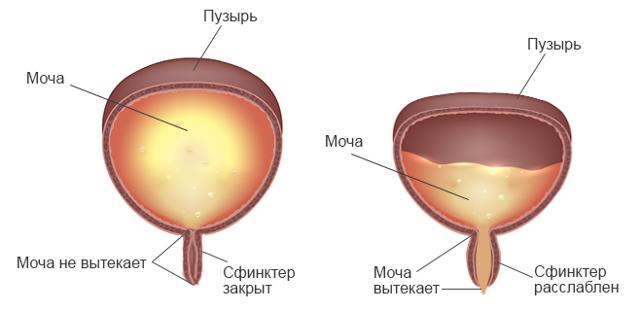 Может ли лопнуть мочевой пузырь: причины, симптомы, последствия разрыва