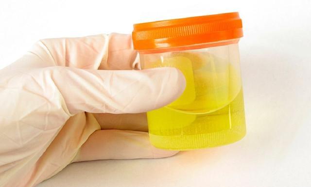 Кетоновые тела в моче у ребенка: что это, норма, причины повышения
