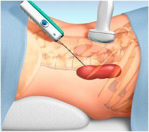 Биопсия почки и мочевого пузыря: что это такое, показания и противопоказания, как делается, отзывы