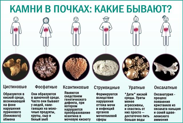 Коралловидные камни в почках: причины, симптомы, последствия, лечение, профилактика