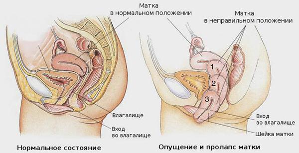Бандаж при опущении внутренних органов: эластичный ремень, пояс физомед и корсет