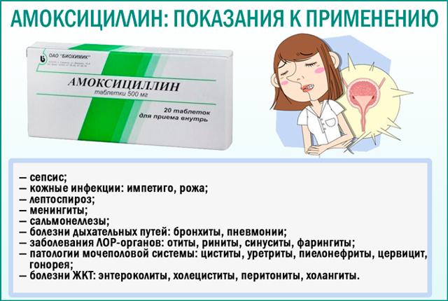 Амоксициллин при цистите у женщин: как принимать, дозировка, отзывы пациентов и врачей