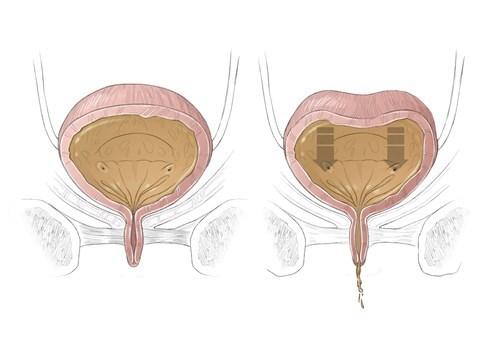 Что такое гипотония мочевого пузыря, возникающая у женщин и детей