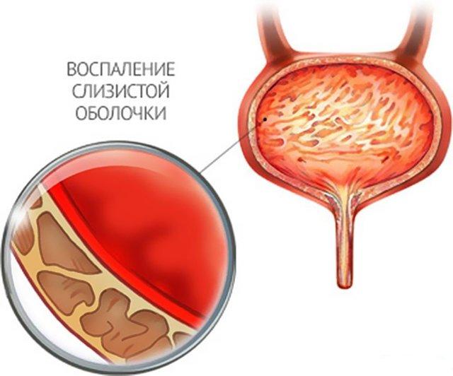 Остаточная моча в мочевом пузыре у женщин, мужчин и ребенка: в норме по УЗИ, лечение