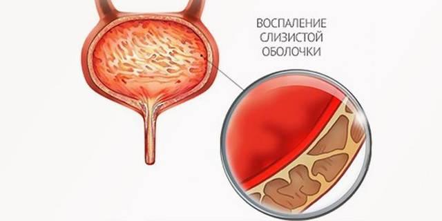 Марена красильная: лечебные свойства и применение в урологии
