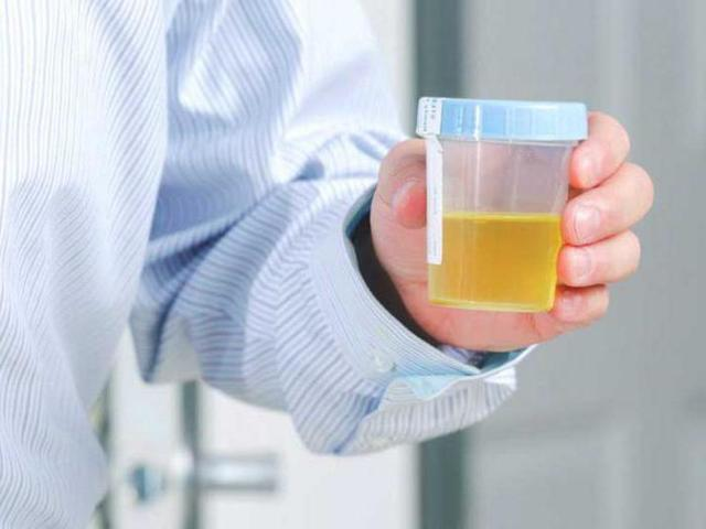 Анализ мочи при цистите: какие показатели свидетельствуют о болезни