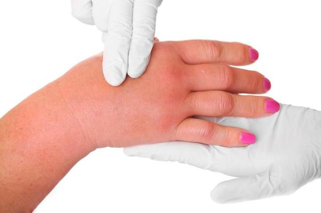 Горбатая почка: причины, симптомы, лечение и профилактика
