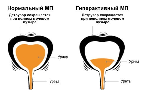 Гиперактивный мочевой пузырь у женщин, мужчин и детей: причины, симптомы, лечение