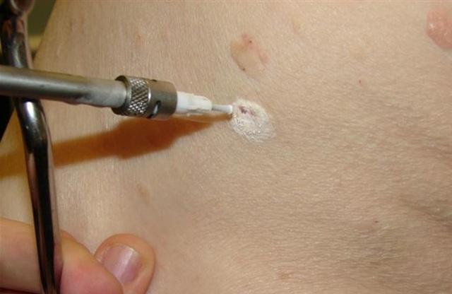 Причины крови с болью при мочеиспускании у мужчин и женщин: уретроррагия