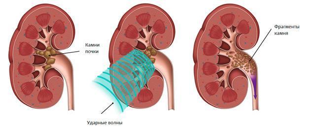 Болит низ живота у женщин (слева, справа, по центру): причины, диагностика, облегчение боли