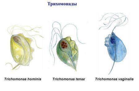 Трихомонадный уретрит у мужчин и женщин: симптомы