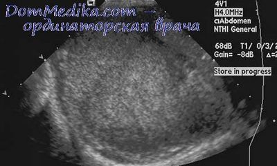 Детрузор мочевого пузыря: гипоксия и гиперрефлексия