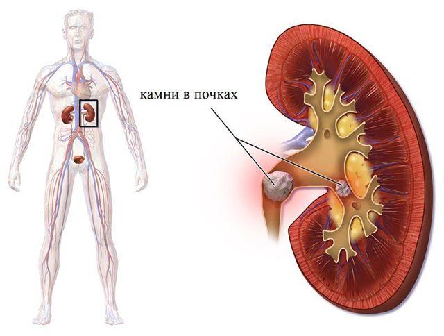 Почему моча с кровью у мужчин: причины, диагностика, лечение гематурии